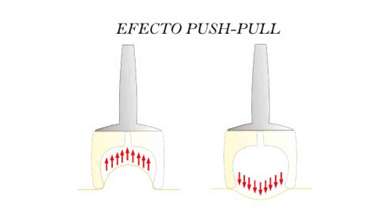 Descubre Vacuum Push-Pull, un efectivo sistema contra la celulitis
