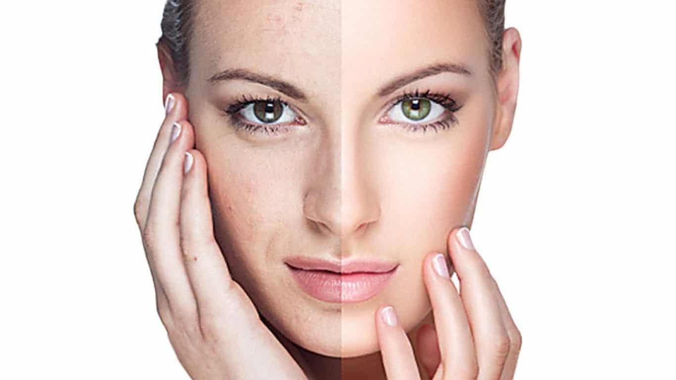 Vigila tu piel y borra de tu rostro las manchas solares con Fotorrejuvenecimiento