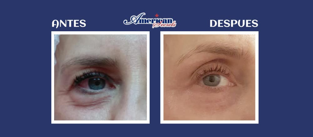 Eliminar bolsas de los ojos con PLASMAPEN